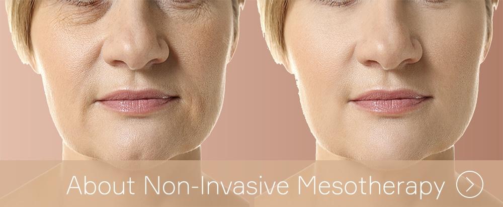 Non Invasive Mesotherapy